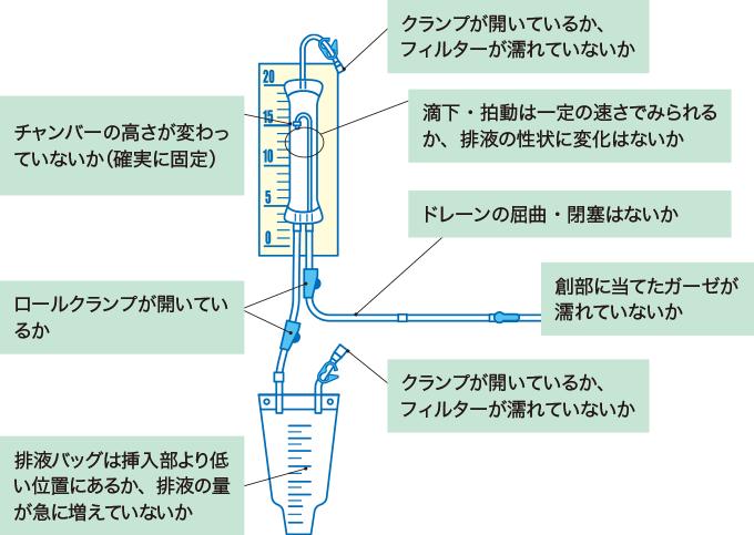 図4ドレナージシステムの観察ポイント
