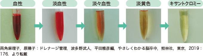 図5ドレーン排液の変化(出血の場合)