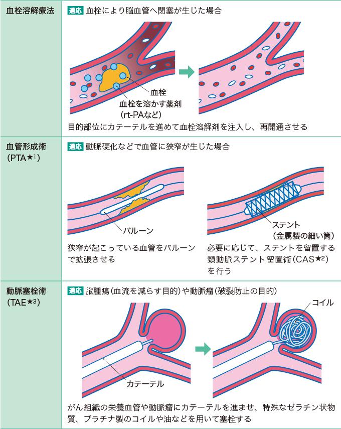 表1脳血管内治療