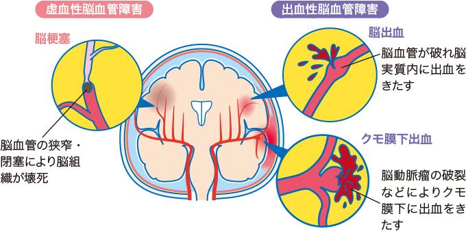 図1脳血管障害の分類
