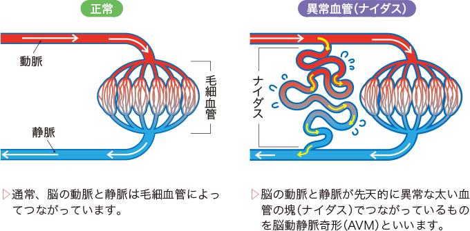図2脳動静脈奇形(AVM)