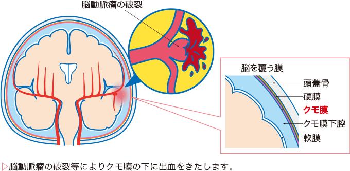 図1クモ膜とクモ膜下出血