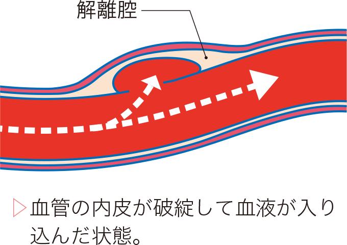 図3脳動脈解離