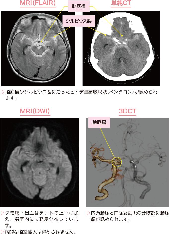 図4クモ膜下出血の診断画像