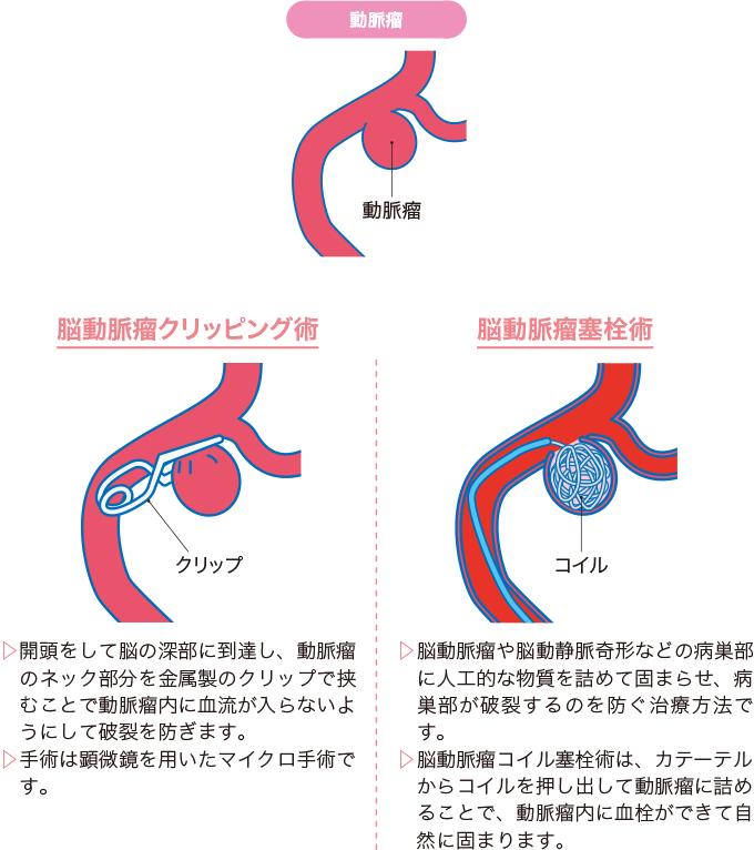 図5脳動脈瘤の治療法