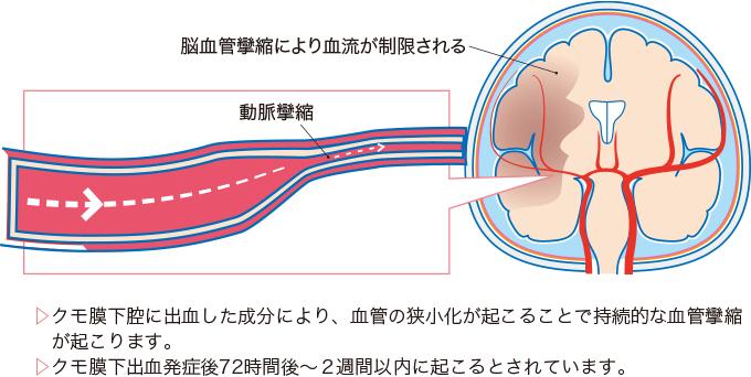 図6脳血管攣縮