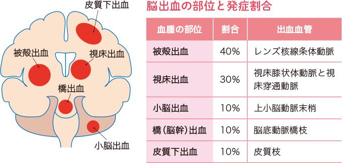 図1脳出血の主な出血部位