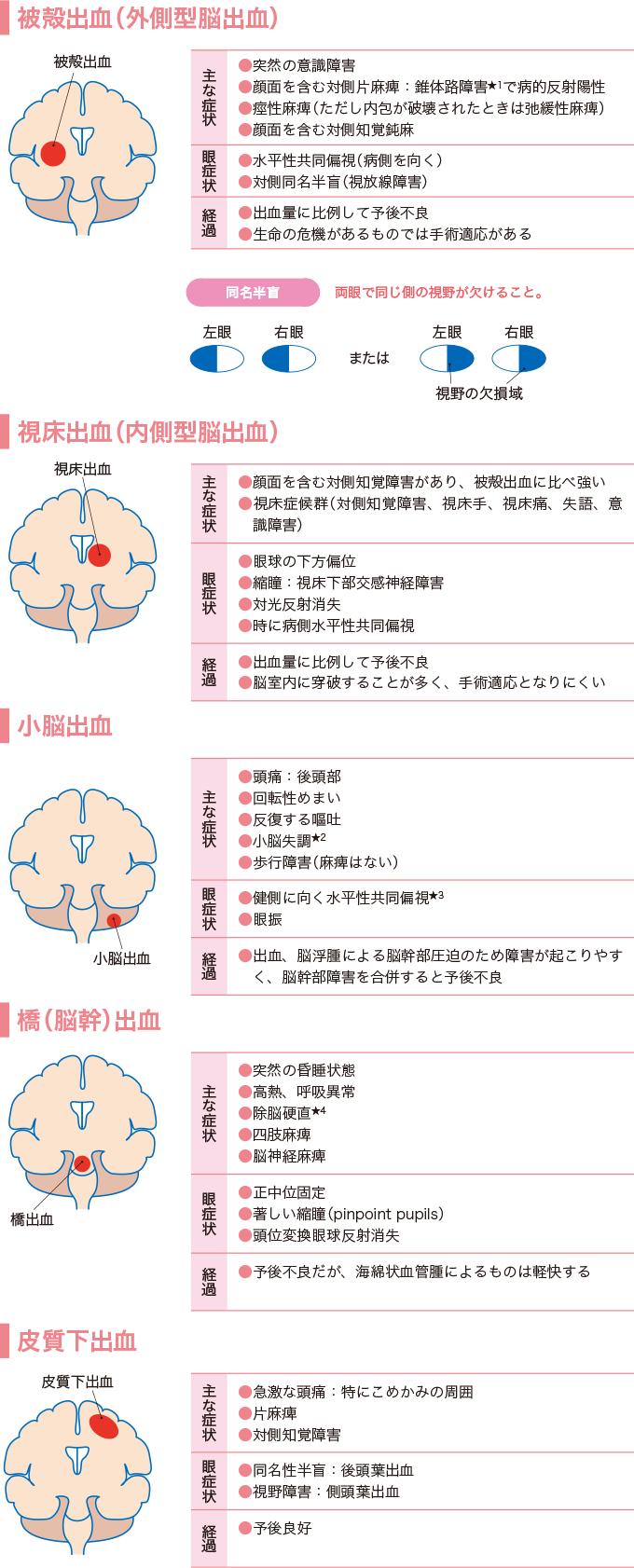 図2脳出血の種類