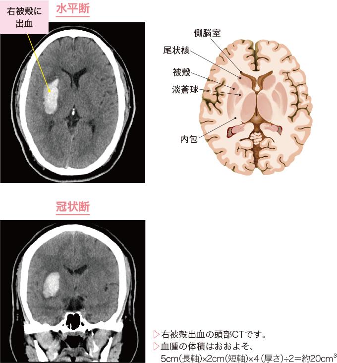 図3脳出血のCT
