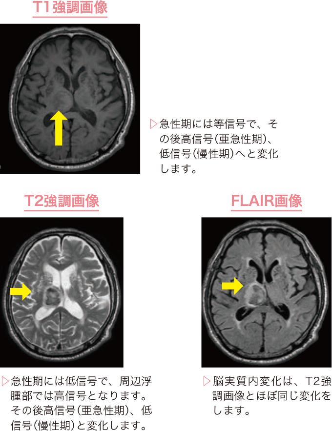 図4脳出血のMRI