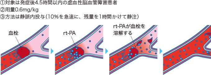 図10rt-PA静注療法の実際