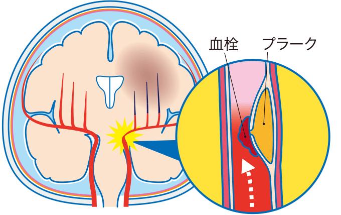 図2アテローム血栓性脳梗塞