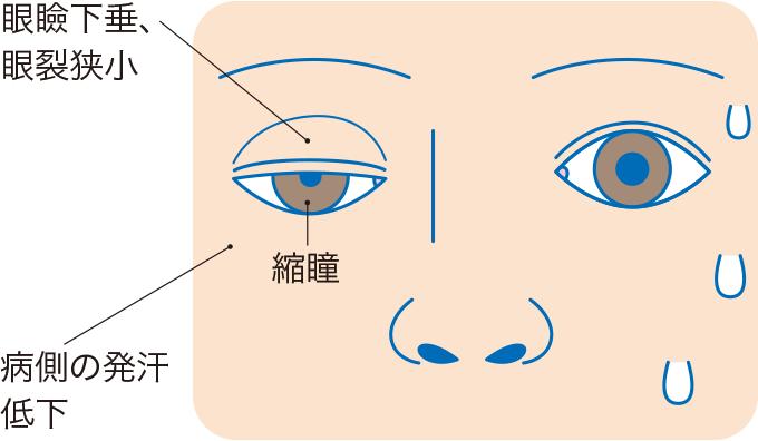 図6ホルネル症候群