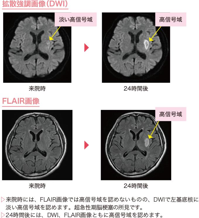 図7脳梗塞のMRI