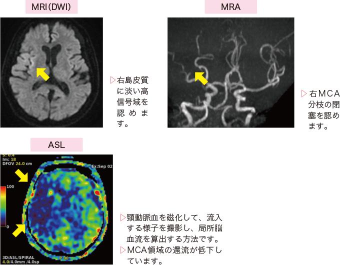 図9右中大脳動脈(MCA)領域の心原性脳塞栓症患者の検査画像