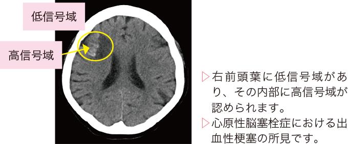 図8脳梗塞のCT画像