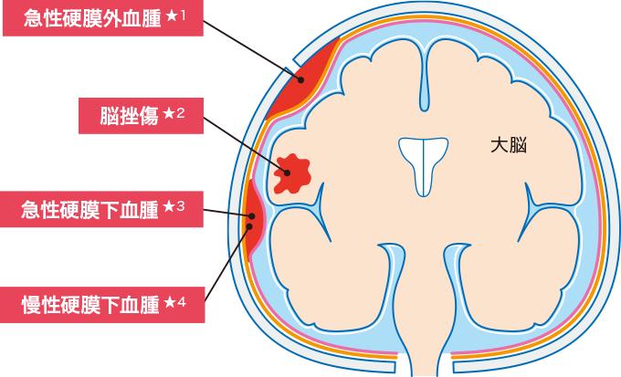 図1頭部外傷の種類