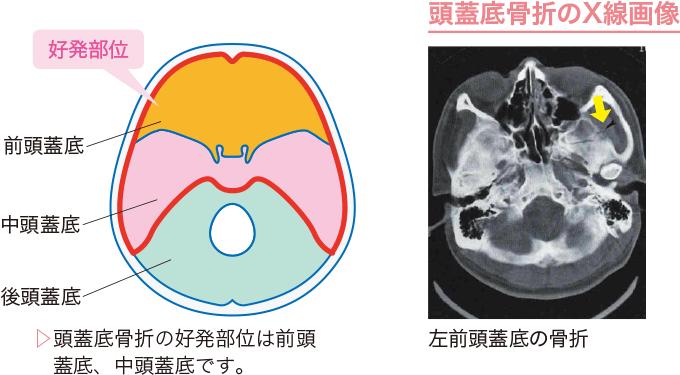 図5頭蓋底骨折