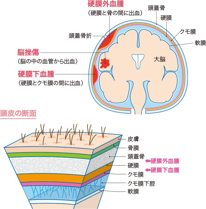 図7頭部外傷の種類