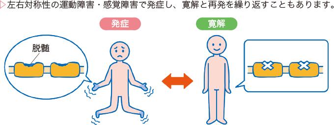 図1慢性炎症性脱髄性多発ニューロパチーの病態