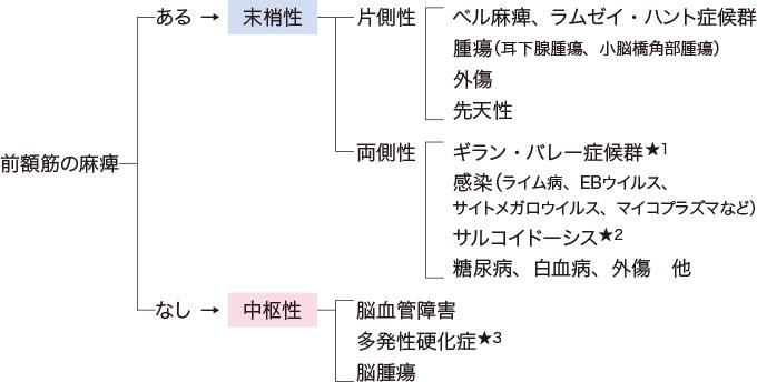 図2顔面神経麻痺の分類