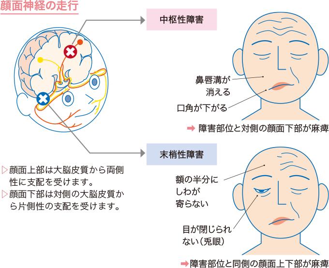図1顔面神経麻痺の病態と症状
