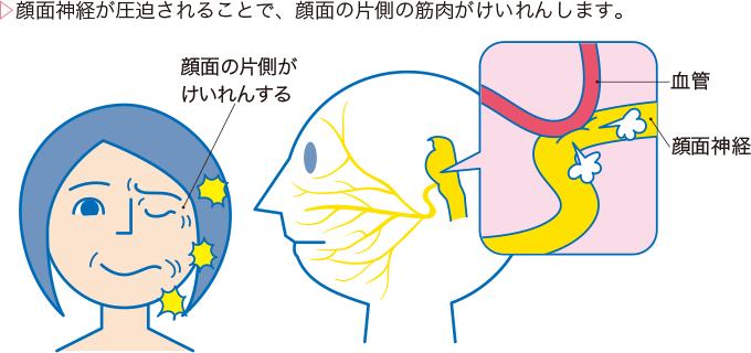 図1顔面けいれんの病態と症状