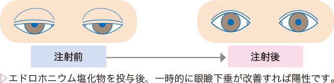図3テンシロン試験(エドロホニウム試験)