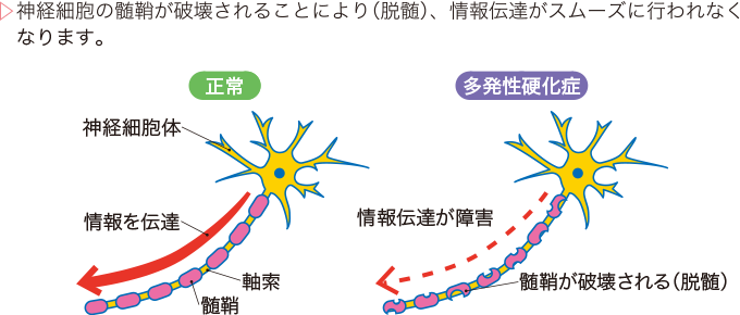 図1多発性硬化症の病態