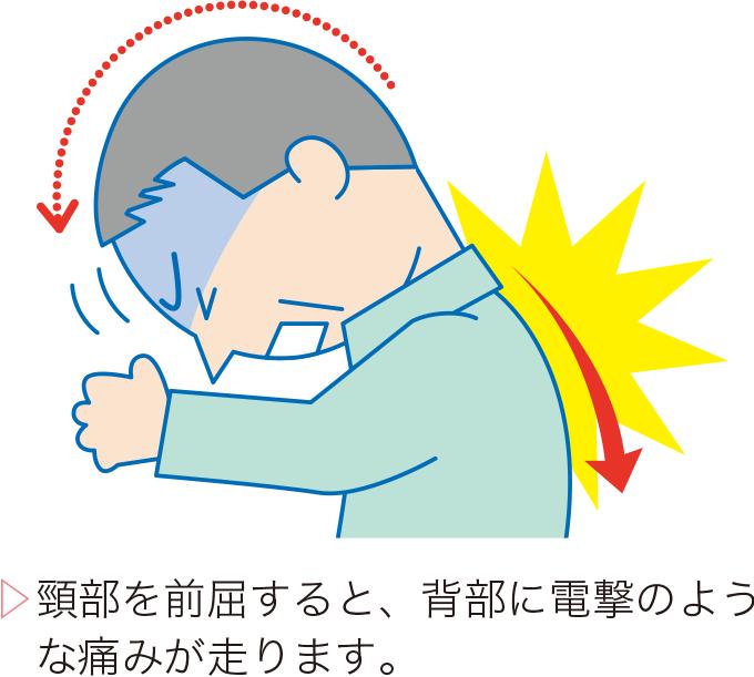 図2レルミット徴候