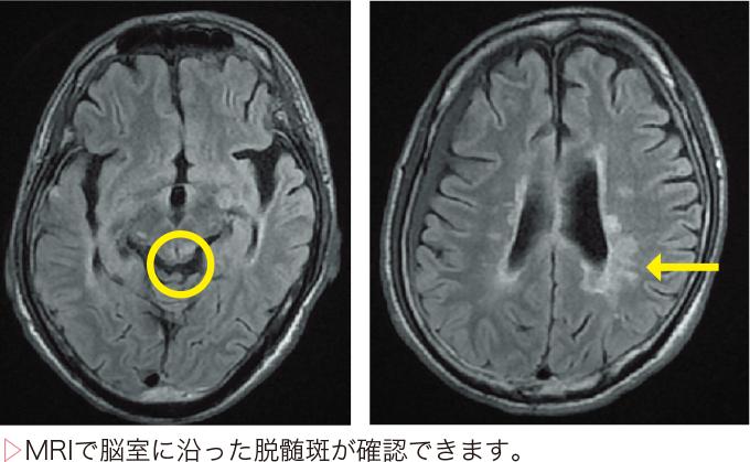 図4多発性硬化症の画像診断