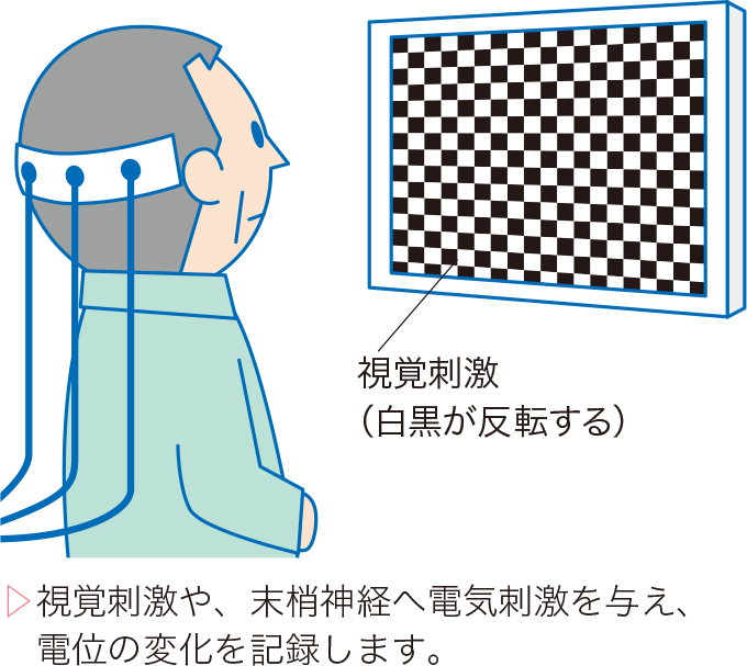 図5誘発電位検査