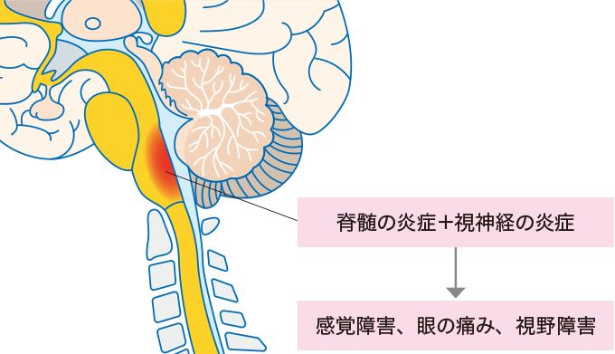 図1視神経脊髄炎