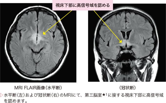 図2視神経脊髄炎の画像診断