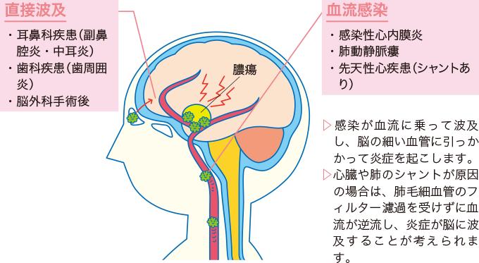 図1脳膿瘍の病態