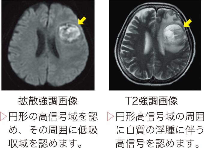 図3脳膿瘍のMRI画像