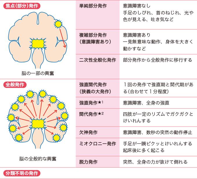 表1てんかん発作の種類