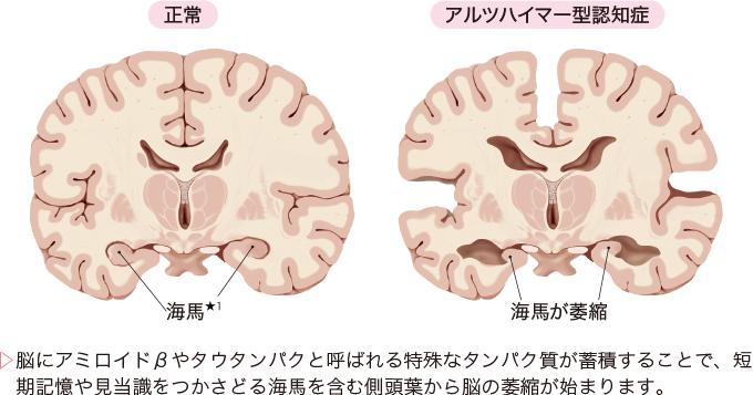 図1アルツハイマー型認知症の病態