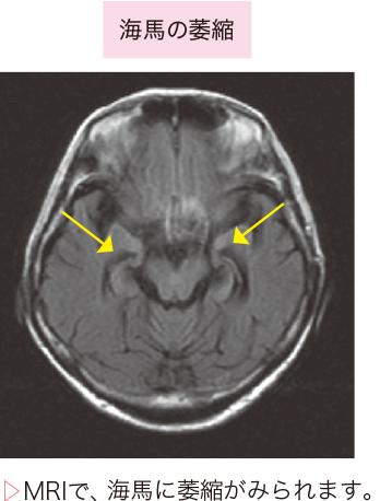 図2アルツハイマー型認知症の画像診断