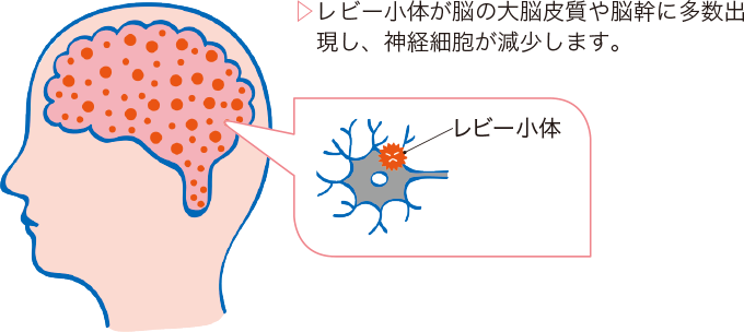 図1レビー小体型認知症の病態