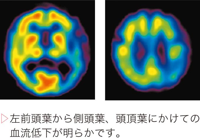 図2前頭側頭型認知症のSPECT
