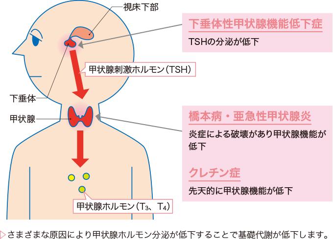 図1甲状腺機能低下症の病態