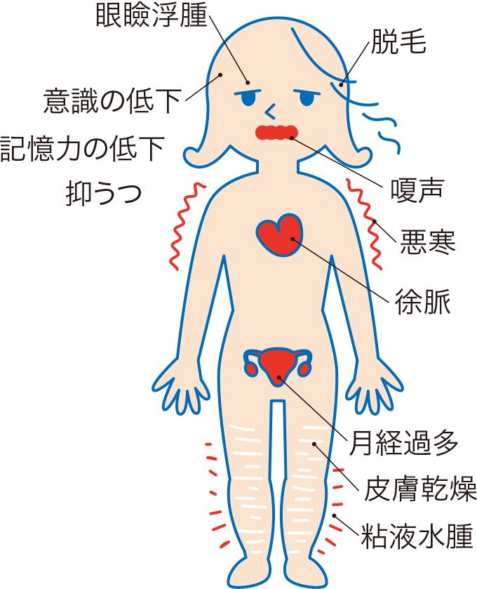図2甲状腺機能低下症の症状