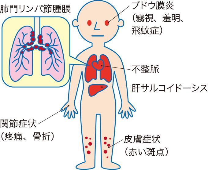 図2サルコイドーシスの症状
