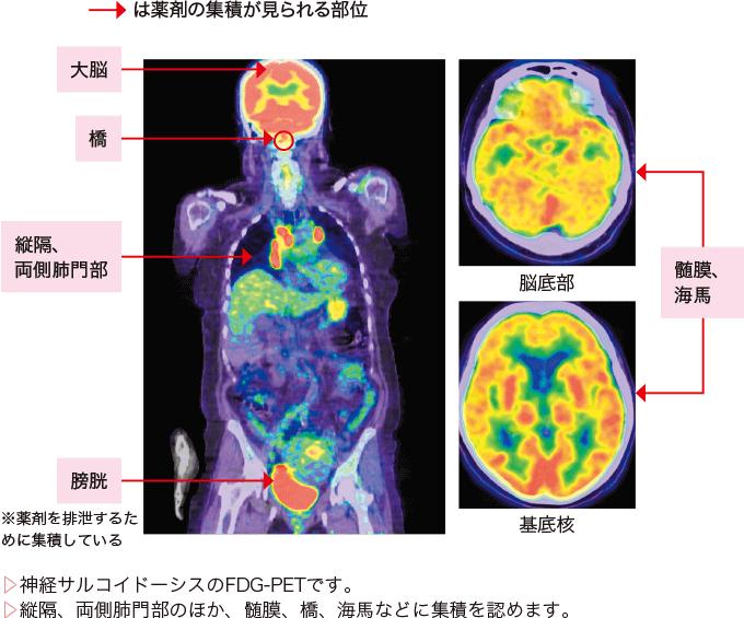 図3神経サルコイドーシスの画像診断