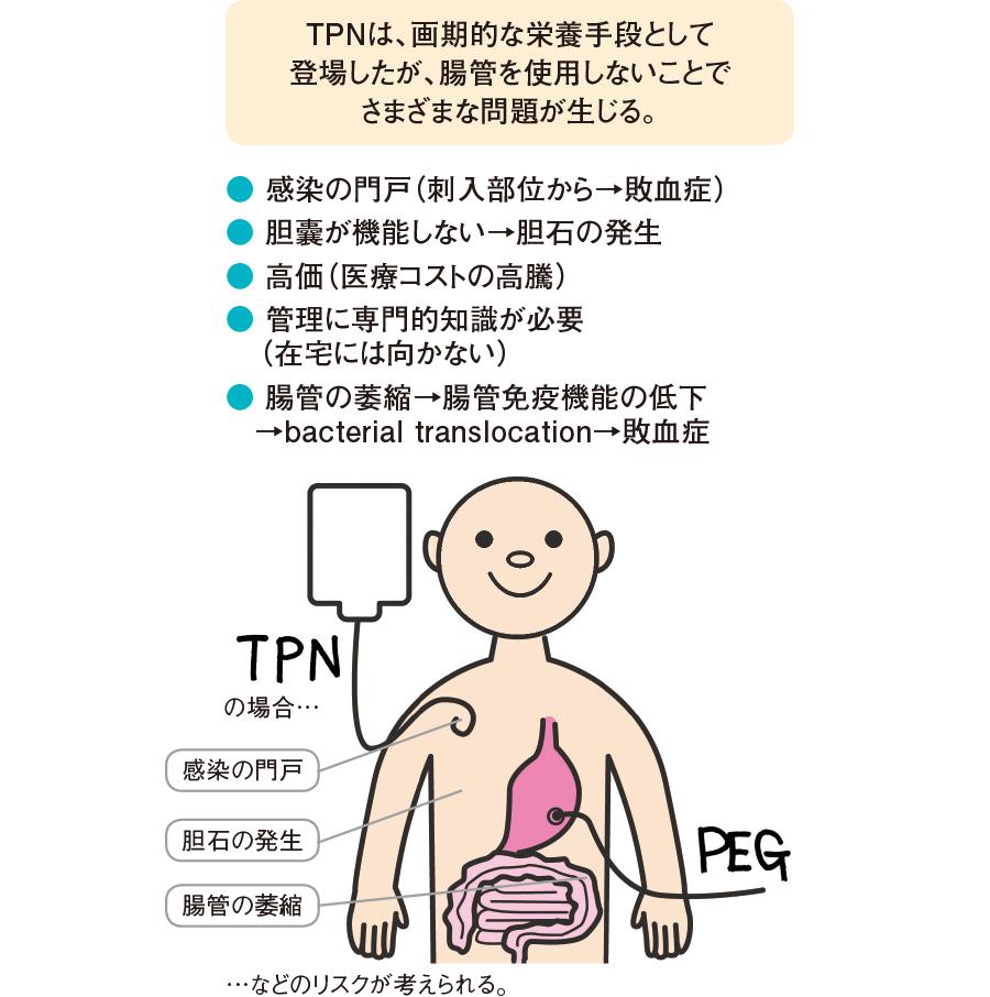 TPN(中心静脈栄養)の問題点