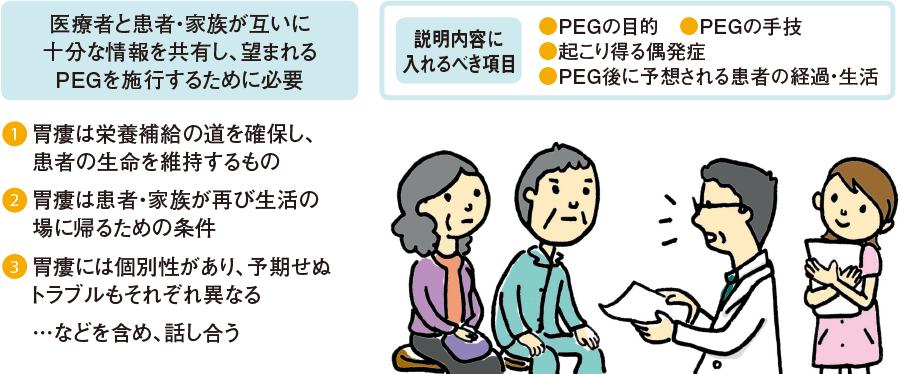 PEGのインフォームドコンセントとは