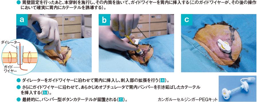 イントロデューサー変法(カンガルーセルジンガーPEGキット)の手順