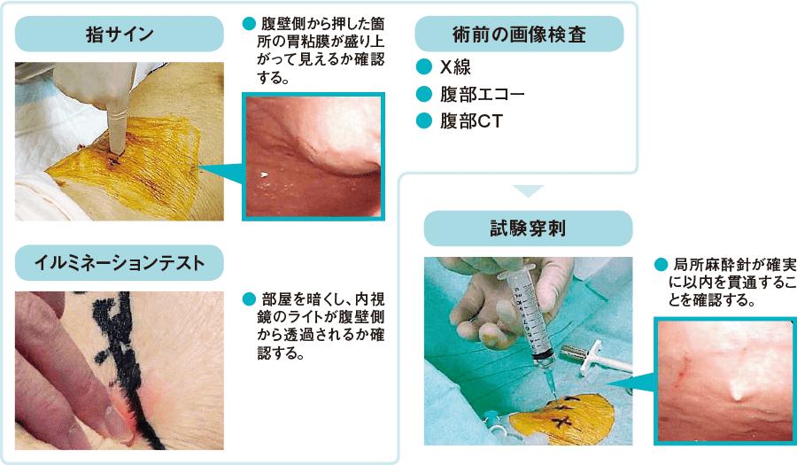 穿刺部の決定と試験穿刺