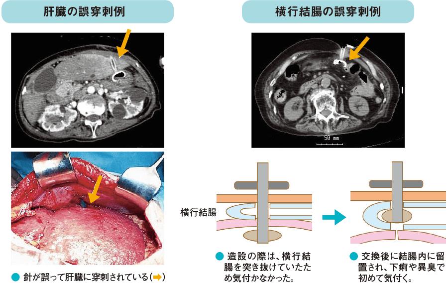 誤穿刺の例(肝臓、横行結腸)